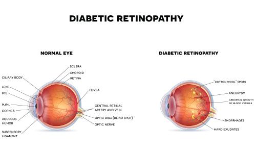 Diseases of the eye east alabama eye clinic conjunctivitis pink eye ccuart Choice Image